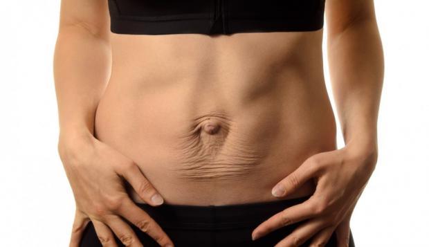 Rozejście kresy białej, czyli o mięśniach brzucha inaczej część 1